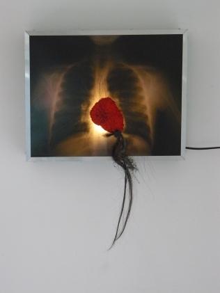 poumons-coeur rouge