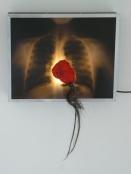 radio-poumons-coeur rouge
